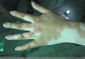 指甲上有白斑是怎么回事